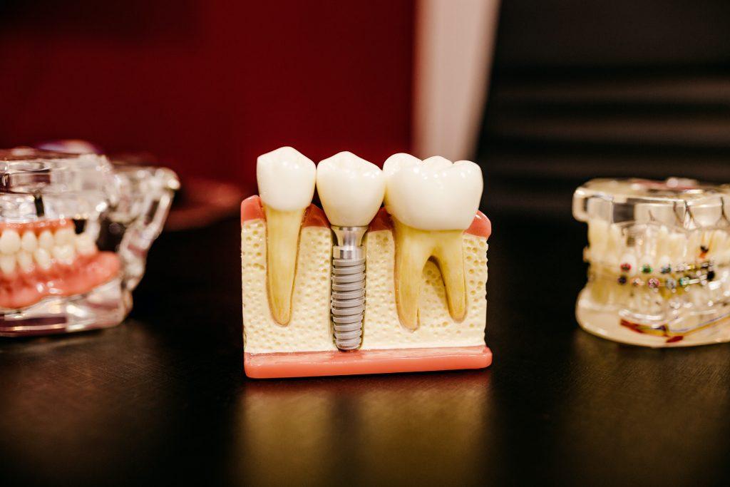 Tandblekning - Hemma eller hos tandläkaren? Så funkar det